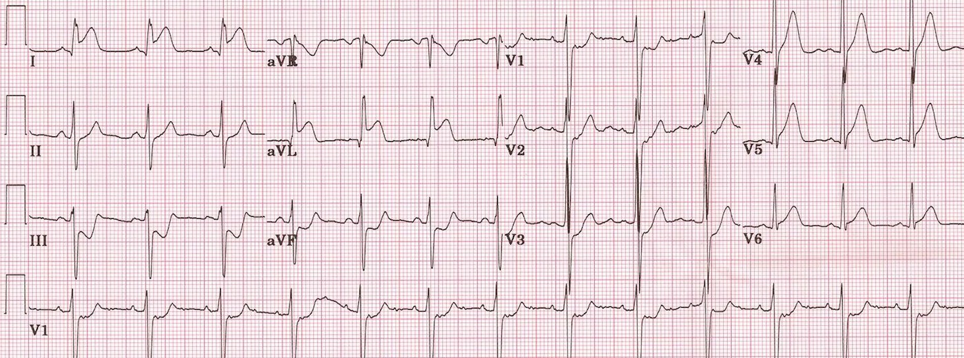 High lateral STEMI